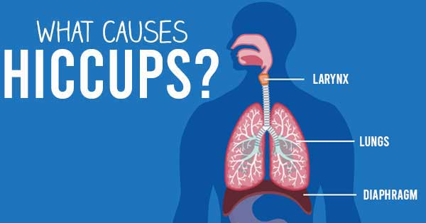 what causes hiccups