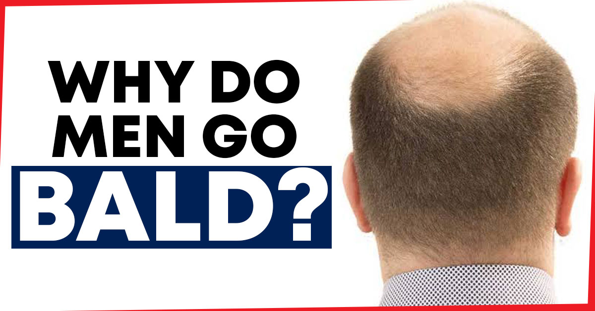 why do men go bald?